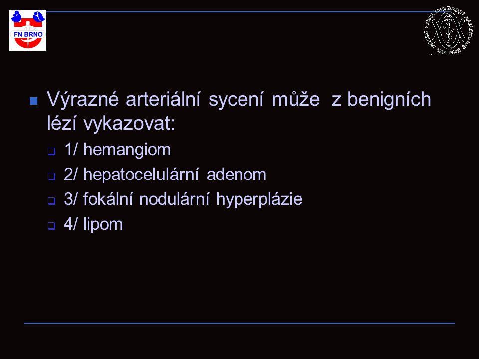 Výrazné arteriální sycení může z benigních lézí vykazovat:  1/ hemangiom  2/ hepatocelulární adenom  3/ fokální nodulární hyperplázie  4/ lipom