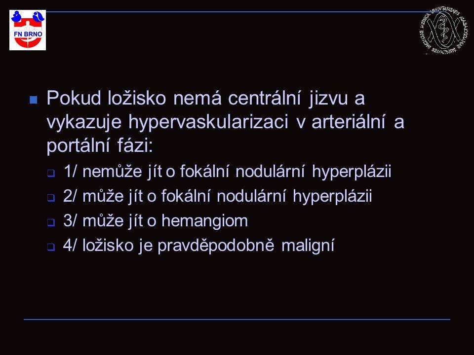 Pokud ložisko nemá centrální jizvu a vykazuje hypervaskularizaci v arteriální a portální fázi:  1/ nemůže jít o fokální nodulární hyperplázii  2/ může jít o fokální nodulární hyperplázii  3/ může jít o hemangiom  4/ ložisko je pravděpodobně maligní