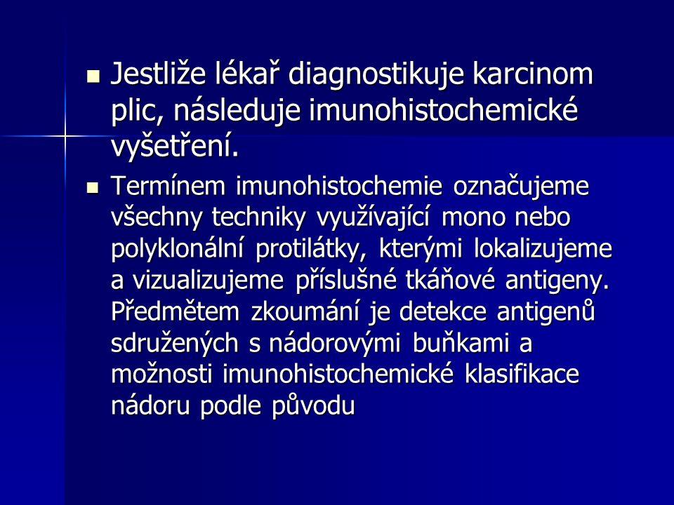 Jestliže lékař diagnostikuje karcinom plic, následuje imunohistochemické vyšetření. Jestliže lékař diagnostikuje karcinom plic, následuje imunohistoch