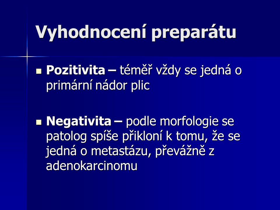 Vyhodnocení preparátu Pozitivita – téměř vždy se jedná o primární nádor plic Pozitivita – téměř vždy se jedná o primární nádor plic Negativita – podle