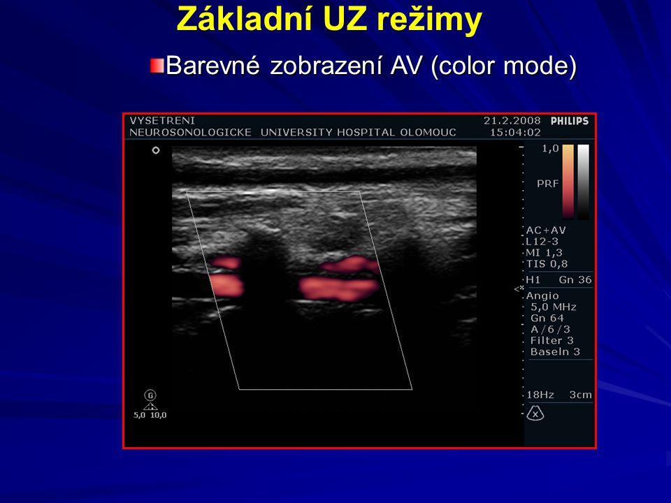 Pulzní dopplerovské zobrazení - rychlost a charakteristika krevního toku Základní UZ režimy