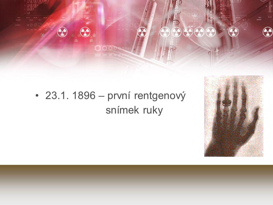 23.1. 1896 – první rentgenový snímek ruky