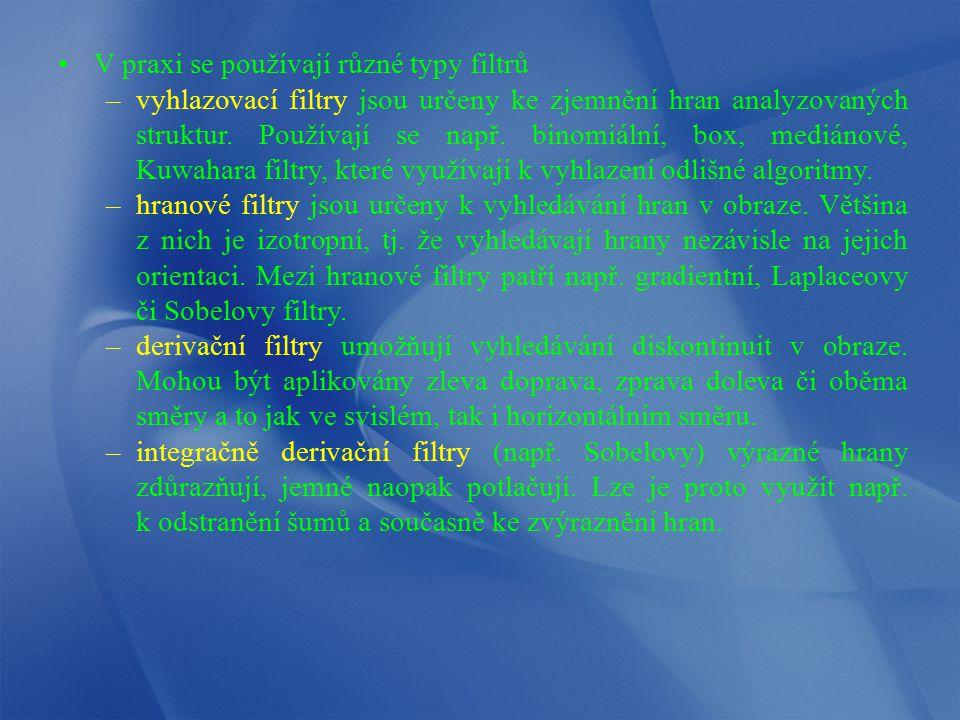 V praxi se používají různé typy filtrů –vyhlazovací filtry jsou určeny ke zjemnění hran analyzovaných struktur. Používají se např. binomiální, box, me