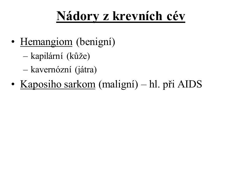 Nádory z krevních cév Hemangiom (benigní) –kapilární (kůže) –kavernózní (játra) Kaposiho sarkom (maligní) – hl. při AIDS