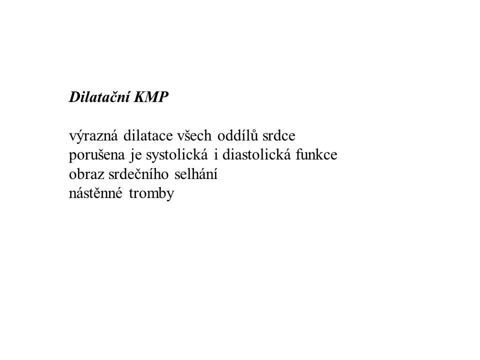 Dilatační KMP výrazná dilatace všech oddílů srdce porušena je systolická i diastolická funkce obraz srdečního selhání nástěnné tromby