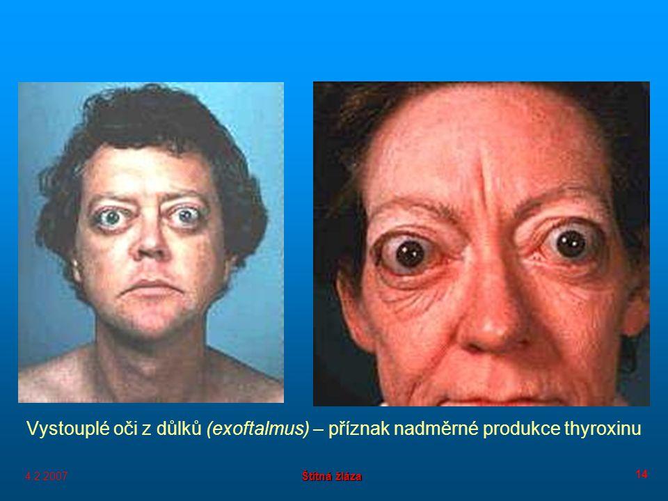 4.2.2007 Štítná žláza 14 Vystouplé oči z důlků (exoftalmus) – příznak nadměrné produkce thyroxinu