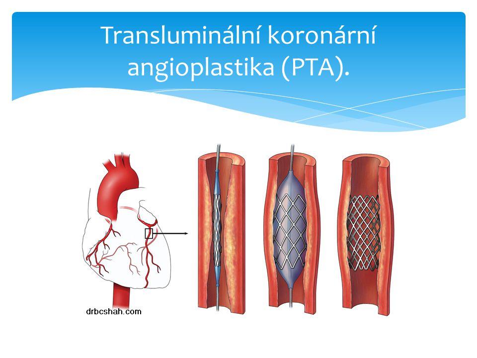 Transluminální koronární angioplastika (PTA).