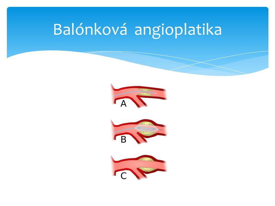 Balónková angioplatika
