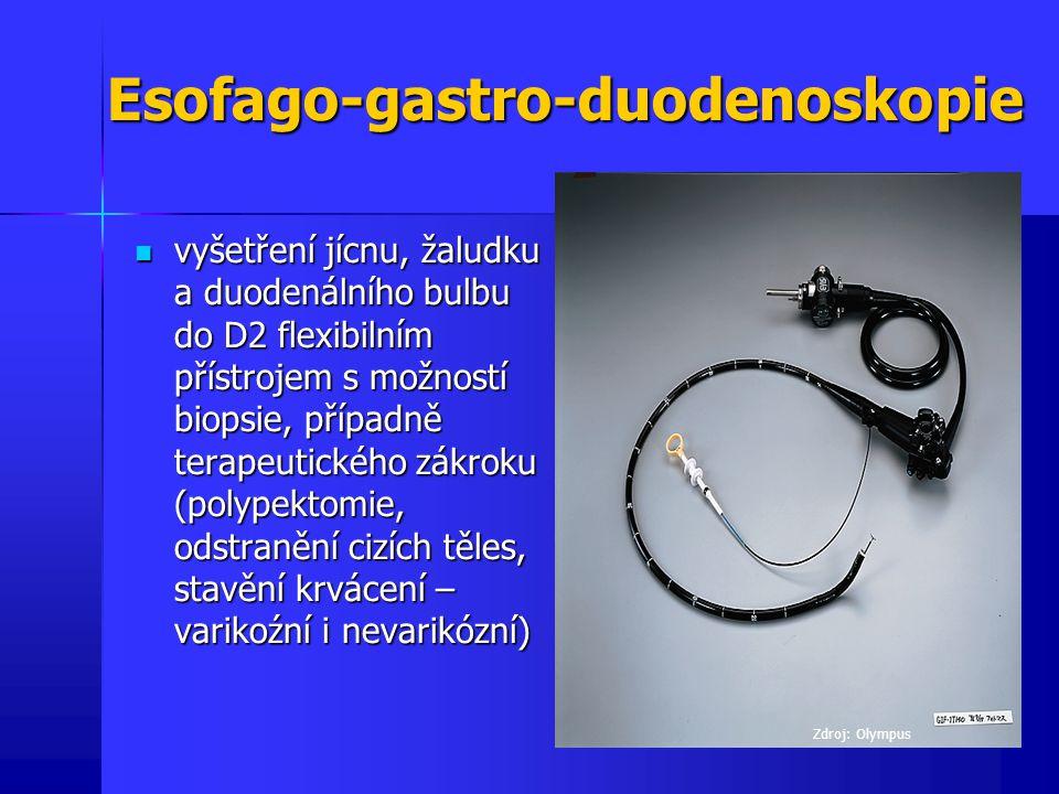 Esofago-gastro-duodenoskopie vyšetření jícnu, žaludku a duodenálního bulbu do D2 flexibilním přístrojem s možností biopsie, případně terapeutického zá