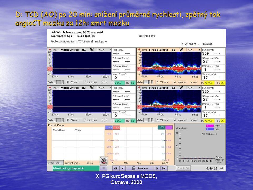X. PG kurz Sepse a MODS, Ostrava, 2008 D: TCD (AO) po 20 min: snížení průměrné rychlosti, zpětný tok angioCT mozku za 12h: smrt mozku