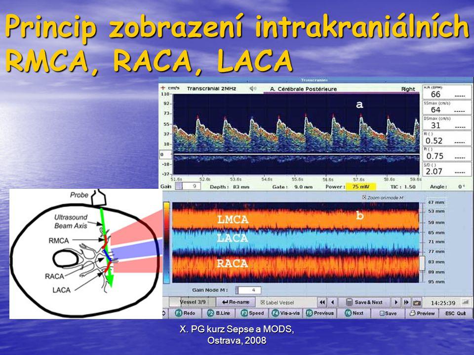 X. PG kurz Sepse a MODS, Ostrava, 2008 Princip zobrazení intrakraniálních RMCA, RACA, LACA