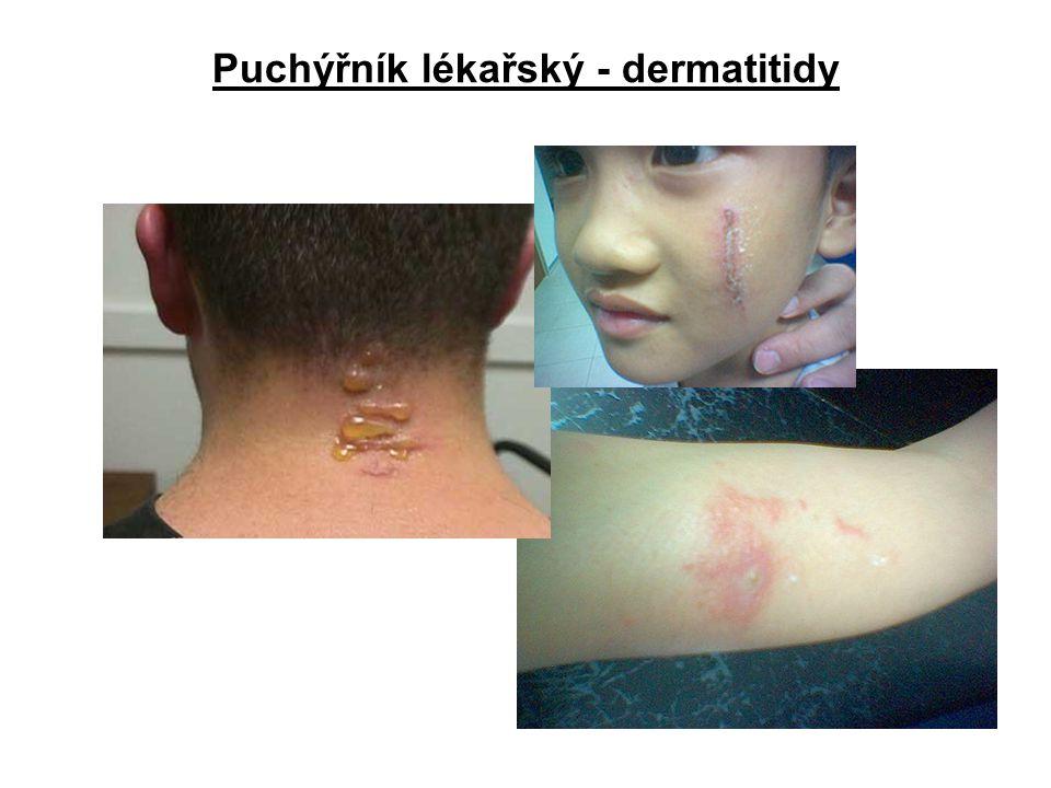 Puchýřník lékařský - dermatitidy
