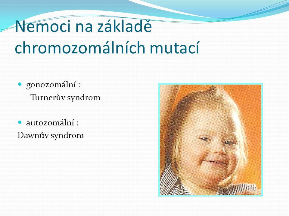 Nemoci na základě chromozomálních mutací gonozomální : Turnerův syndrom autozomální : Dawnův syndrom