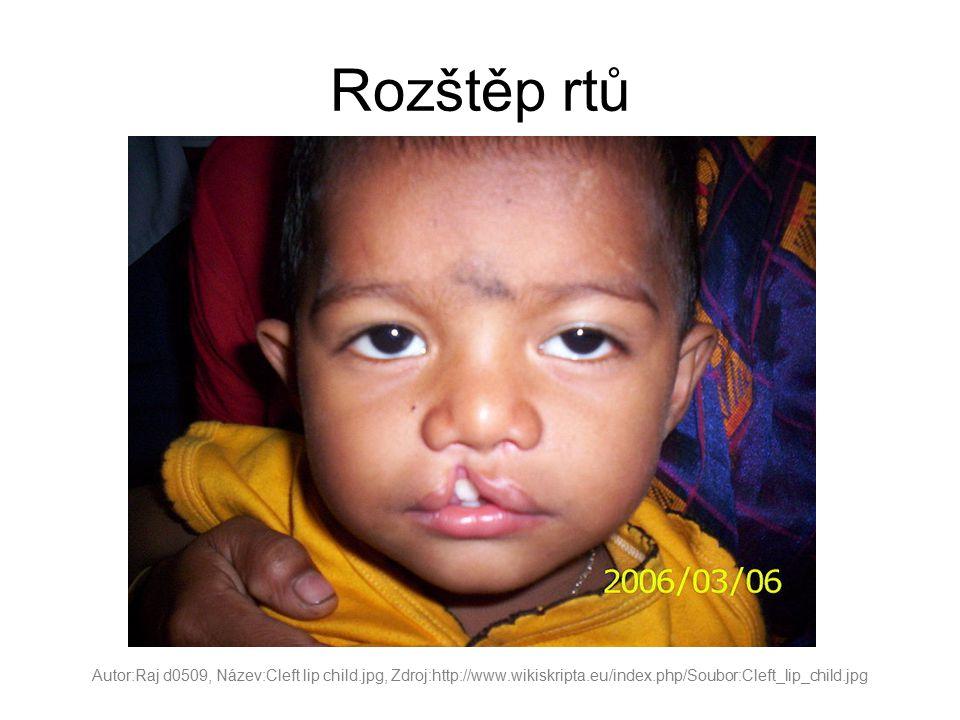 Rozštěp rtů Autor:Raj d0509, Název:Cleft lip child.jpg, Zdroj:http://www.wikiskripta.eu/index.php/Soubor:Cleft_lip_child.jpg