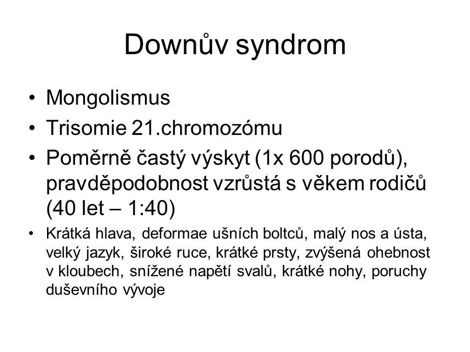Downův syndrom Mongolismus Trisomie 21.chromozómu Poměrně častý výskyt (1x 600 porodů), pravděpodobnost vzrůstá s věkem rodičů (40 let – 1:40) Krátká
