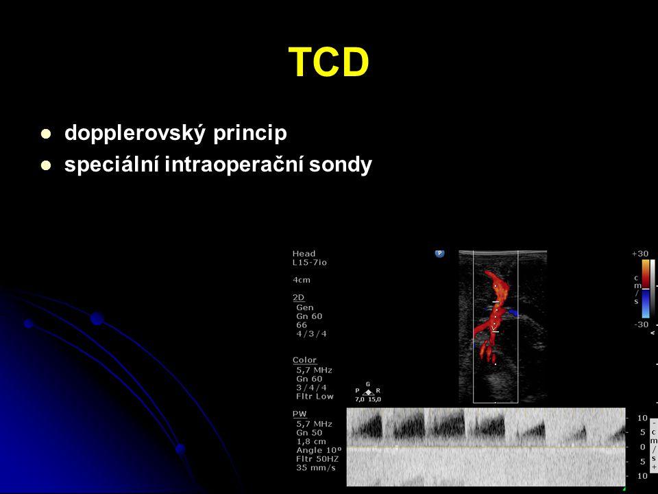 TCD dopplerovský princip speciální intraoperační sondy
