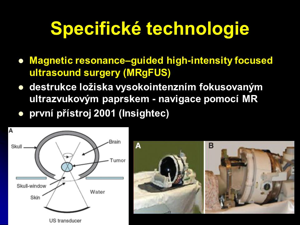 Specifické technologie Magnetic resonance–guided high-intensity focused ultrasound surgery (MRgFUS) destrukce ložiska vysokointenzním fokusovaným ultr