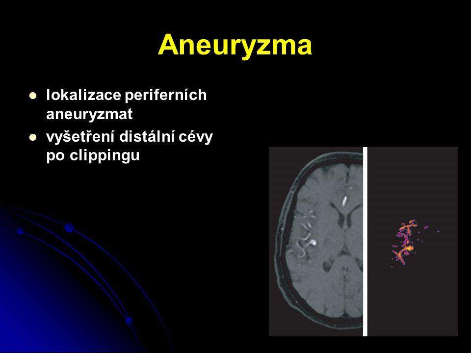 Aneuryzma lokalizace periferních aneuryzmat vyšetření distální cévy po clippingu