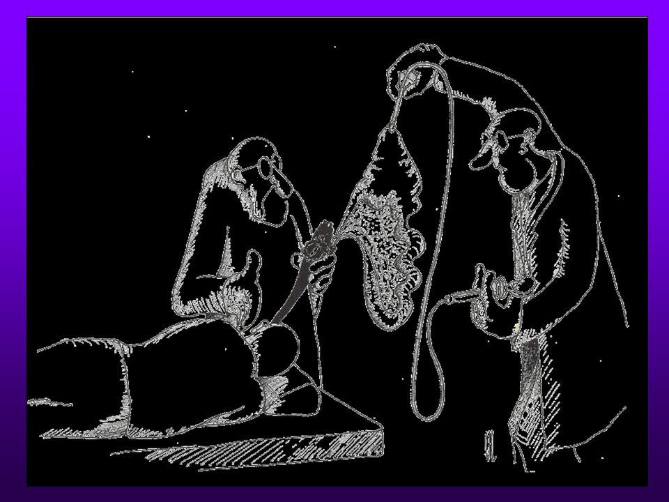 NOTES Natural Orifice Transluminal Endoscopic Surgery Komplikace endoskopie : perforace tračníku a poté transkolonická laparoskopie / thorakoskopie/ perforace jícnu – transoesofageální thorakoskopie, mediastinoskopie, laparoskopie Plánované výkony: Endoskopická pseudocystogastrostomie TEM excize
