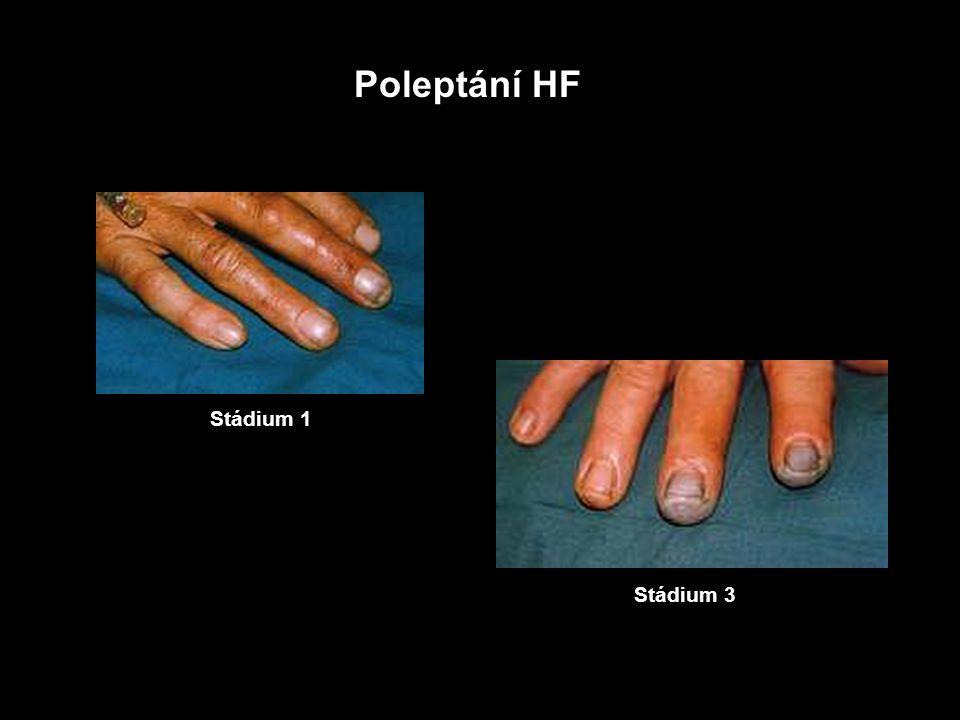3 Fluor Specifické systémové účinky fluoridového iontu (F - ) 1) Syntéza HF 50 % NaF přejde v žaludku na HF - průchod HF přes žaludeční stěnu 10 6 krát větší než F -, více v překyseleném žaludku F - cirkulující v krvi se vrací do úst přes slinné žlázy vzniklá HF má sině dráždivé a leptavé účinky 2) Inhibice enzymů intracelulárního metabolismu inhibice metabolismu glukózy - hypoglykémie inhibice Na + / K + ATP-ázy - hyperkalemie vlivem uvolňování K + do extracelulárního prostoru inhibice acetylcholinesterázy - slinění, zvracení, průjem