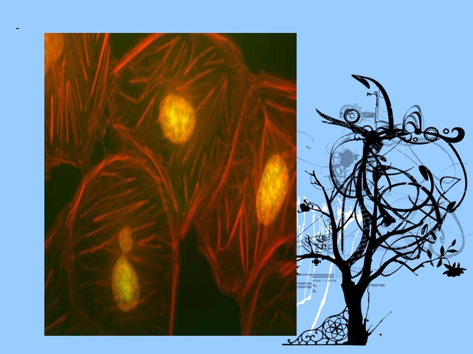 - V porovnání s prokaryotní - je cca 10x větší; - - probíhají u ní metabolismy; - má složitější stavbu..