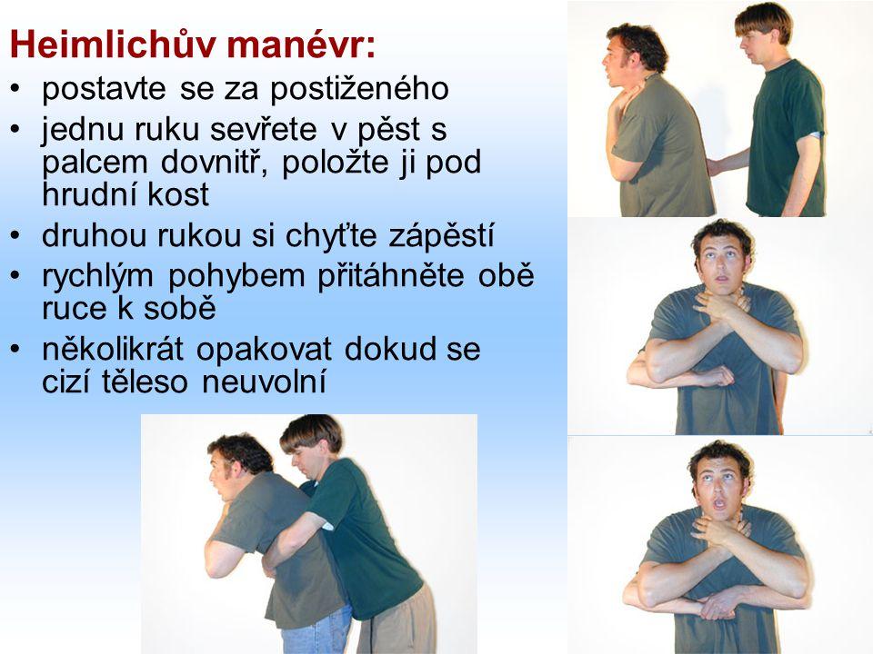 Heimlichův manévr: postavte se za postiženého jednu ruku sevřete v pěst s palcem dovnitř, položte ji pod hrudní kost druhou rukou si chyťte zápěstí rychlým pohybem přitáhněte obě ruce k sobě několikrát opakovat dokud se cizí těleso neuvolní