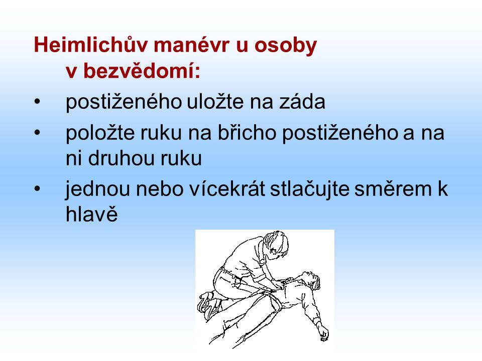 Heimlichův manévr u osoby v bezvědomí: postiženého uložte na záda položte ruku na břicho postiženého a na ni druhou ruku jednou nebo vícekrát stlačujte směrem k hlavě