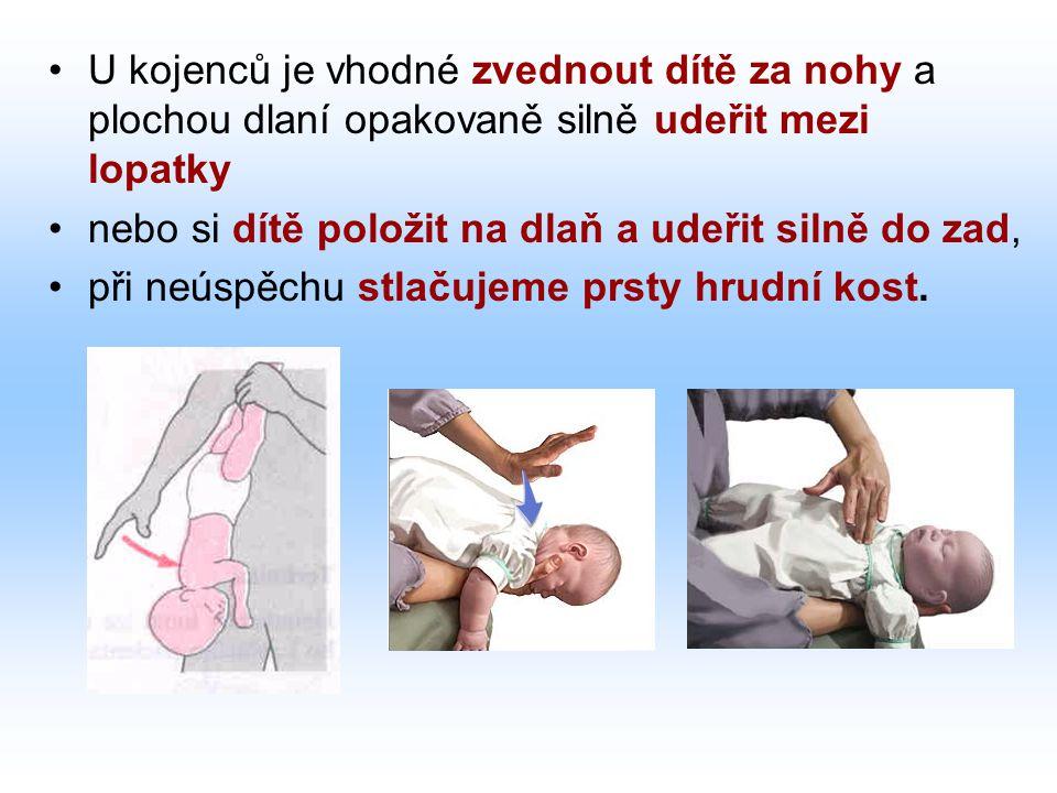 U kojenců je vhodné zvednout dítě za nohy a plochou dlaní opakovaně silně udeřit mezi lopatky nebo si dítě položit na dlaň a udeřit silně do zad, při neúspěchu stlačujeme prsty hrudní kost.