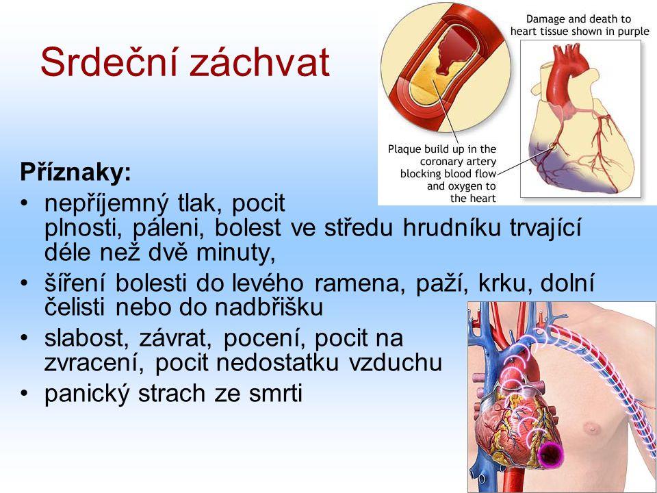 Srdeční záchvat Příznaky: nepříjemný tlak, pocit plnosti, páleni, bolest ve středu hrudníku trvající déle než dvě minuty, šíření bolesti do levého ramena, paží, krku, dolní čelisti nebo do nadbřišku slabost, závrat, pocení, pocit na zvracení, pocit nedostatku vzduchu panický strach ze smrti