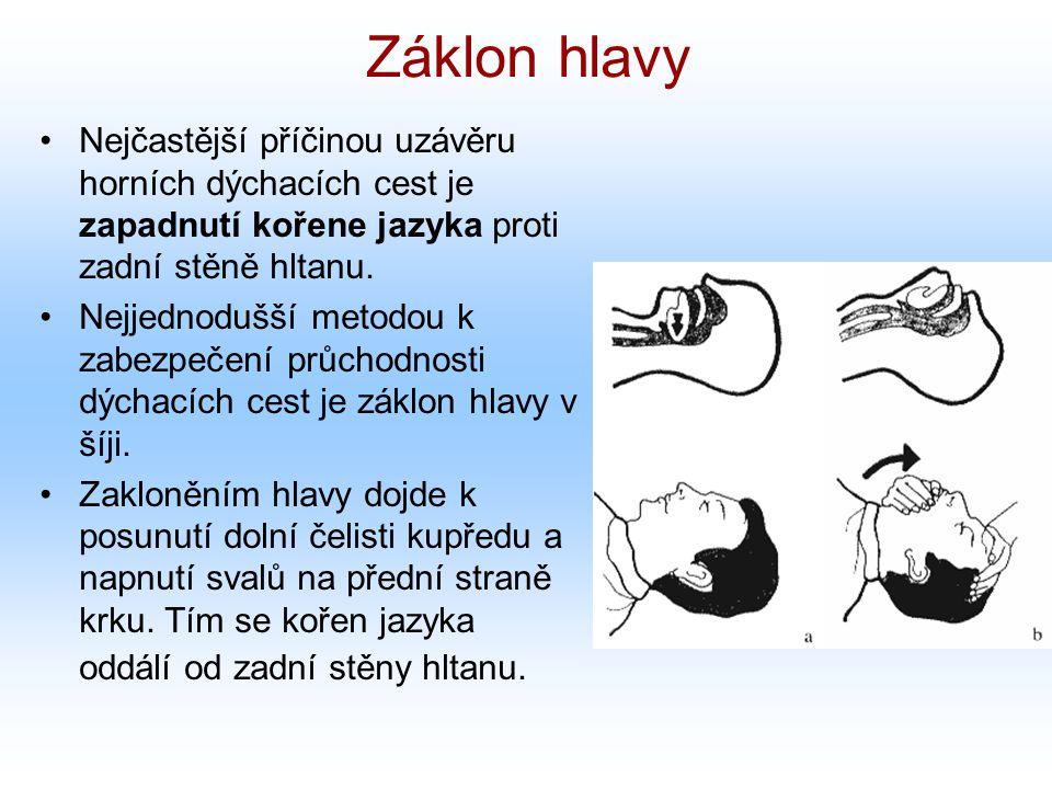Záklon hlavy Nejčastější příčinou uzávěru horních dýchacích cest je zapadnutí kořene jazyka proti zadní stěně hltanu. Nejjednodušší metodou k zabezpeč