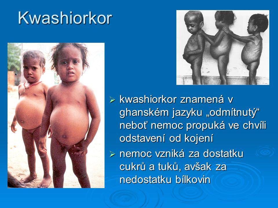 """Kwashiorkor  kwashiorkor znamená v ghanském jazyku """"odmítnutý"""" neboť nemoc propuká ve chvíli odstavení od kojení  nemoc vzniká za dostatku cukrů a t"""