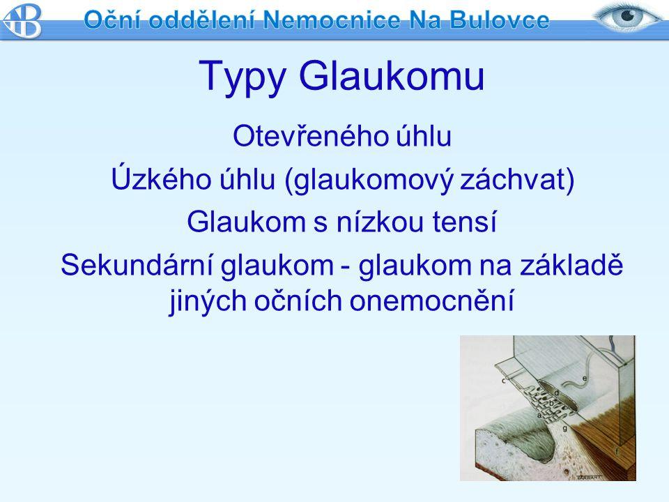 Diagnostika glaukomu PRAVIDELNÉ NÁVŠTĚVY OČNÍHO LÉKAŘE Biomikroskopie Oftalmoskopie Gonioskopie Perimetrie GDx OCT