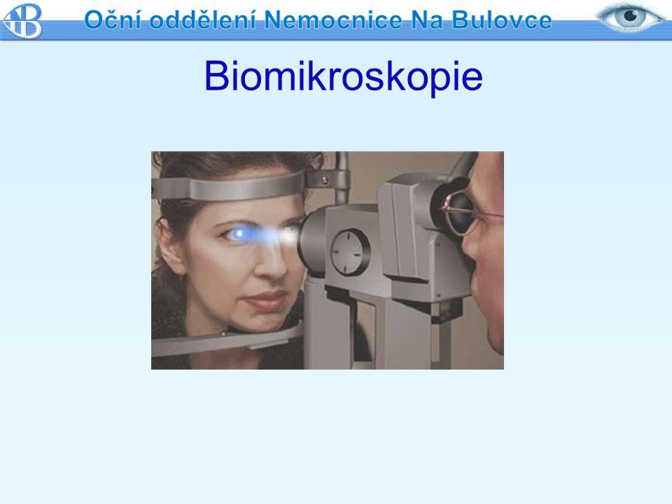 Medikamentosní léčba Nejčastěji ve formě očních kapek Méně často celkové podání léků Úspěšnost spočívá v pravidelnosti aplikace Nezbytná správná technika kapání