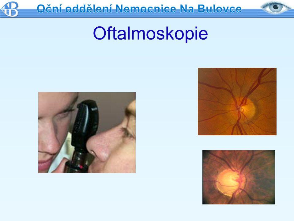 Léčba laserem Když místní léčba kapkami neúčinná Zlepšuje odtok nitrooční tekutiny, tím ↓ NOT Nebolestivé Ambulantní Pouze na uvážení lékaře