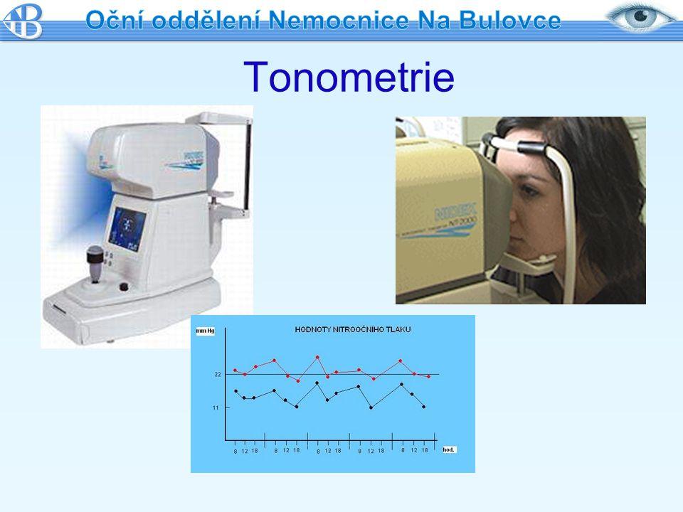 Operační léčba Když léčba laserem neúčinná nebo nevhodná Zlepšuje odtok nitrooční tekutiny Vytvoření drobného průchodu ve stěně oka, kterým je při vysokém NOT odváděna tekutina pod spojivku-kryto víčkem Současně vytvoření otvoru v duhovce