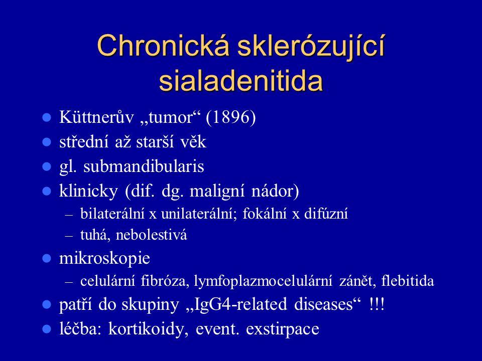 """Chronická sklerózující sialadenitida Küttnerův """"tumor"""" (1896) střední až starší věk gl. submandibularis klinicky (dif. dg. maligní nádor) – bilateráln"""