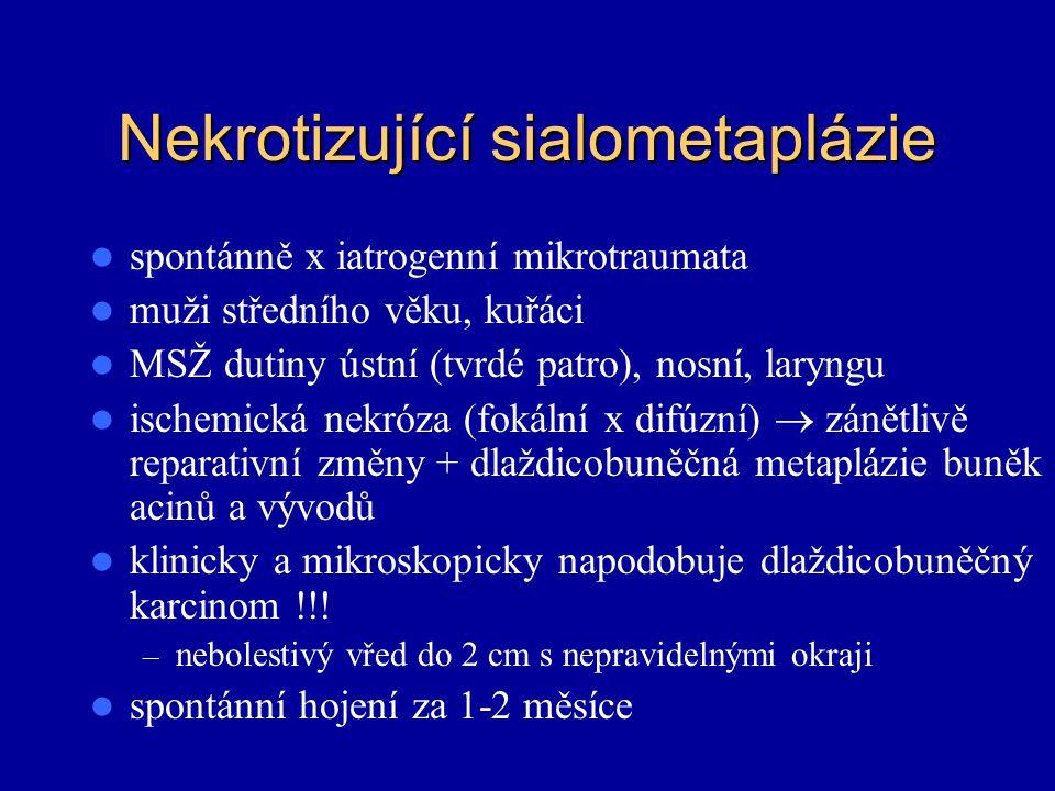 Nekrotizující sialometaplázie spontánně x iatrogenní mikrotraumata muži středního věku, kuřáci MSŽ dutiny ústní (tvrdé patro), nosní, laryngu ischemic