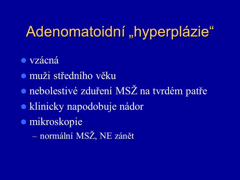 """Adenomatoidní """"hyperplázie"""" vzácná muži středního věku nebolestivé zduření MSŽ na tvrdém patře klinicky napodobuje nádor mikroskopie – normální MSŽ, N"""