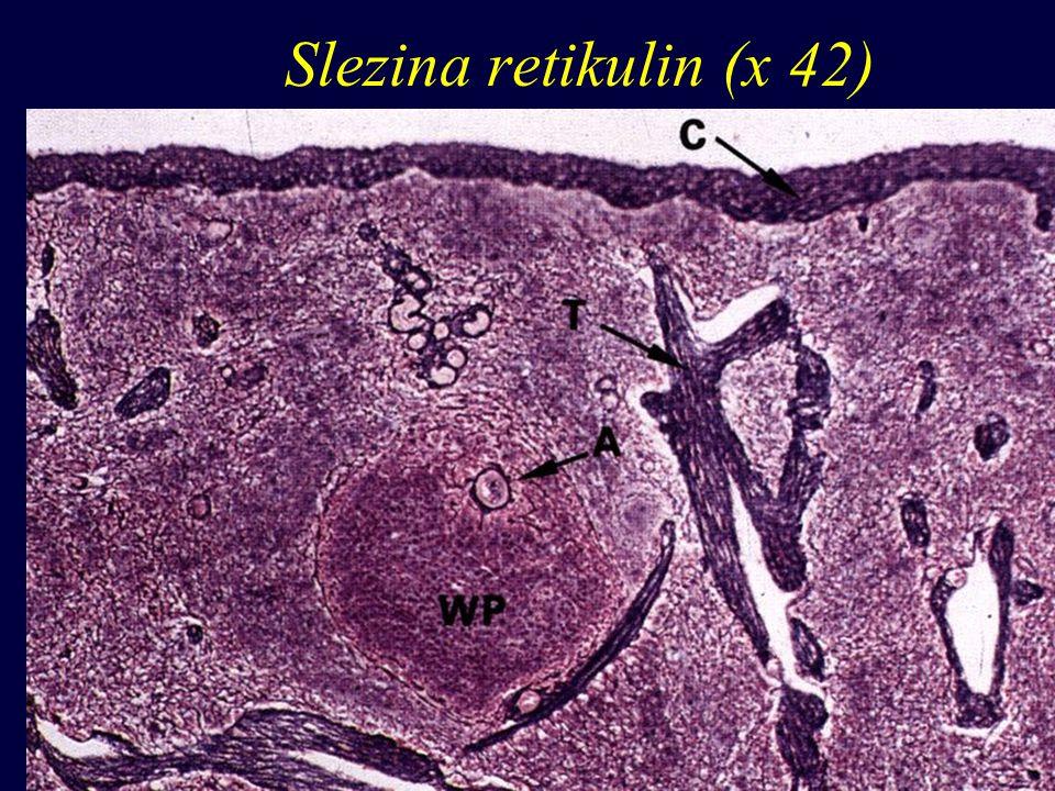 Slezina retikulin (x 42)