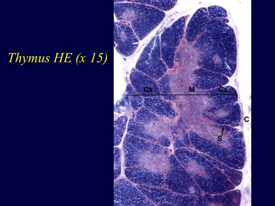 Slezina - červená pulpa w Billrothovy provazce buňky mezi sinusoidami lymfocyty, makrofágy, erytrocyty retikulární vlákna - obručovitě uspořádána w krevní sinusy endotelie protáhlé, nesouvislé vázány na retikul.