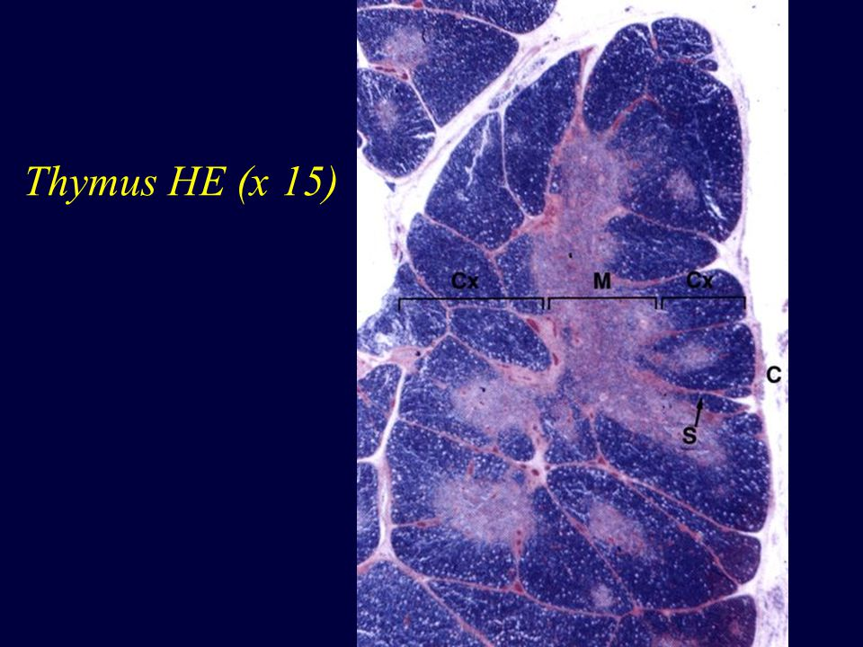 Lymfatická uzlina HE (x 128)