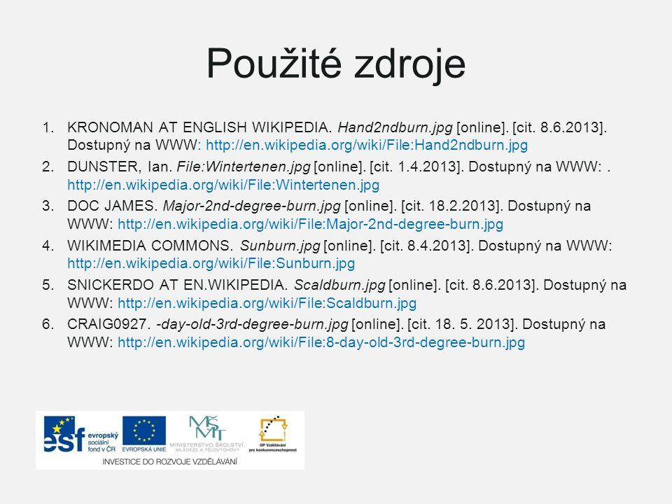 Použité zdroje 1.KRONOMAN AT ENGLISH WIKIPEDIA. Hand2ndburn.jpg [online]. [cit. 8.6.2013]. Dostupný na WWW: http://en.wikipedia.org/wiki/File:Hand2ndb