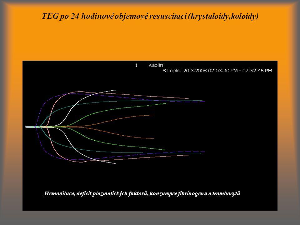 TEG po 24 hodinové objemové resuscitaci (krystaloidy,koloidy) Hemodiluce, deficit plazmatických faktorů, konzumpce fibrinogenu a trombocytů