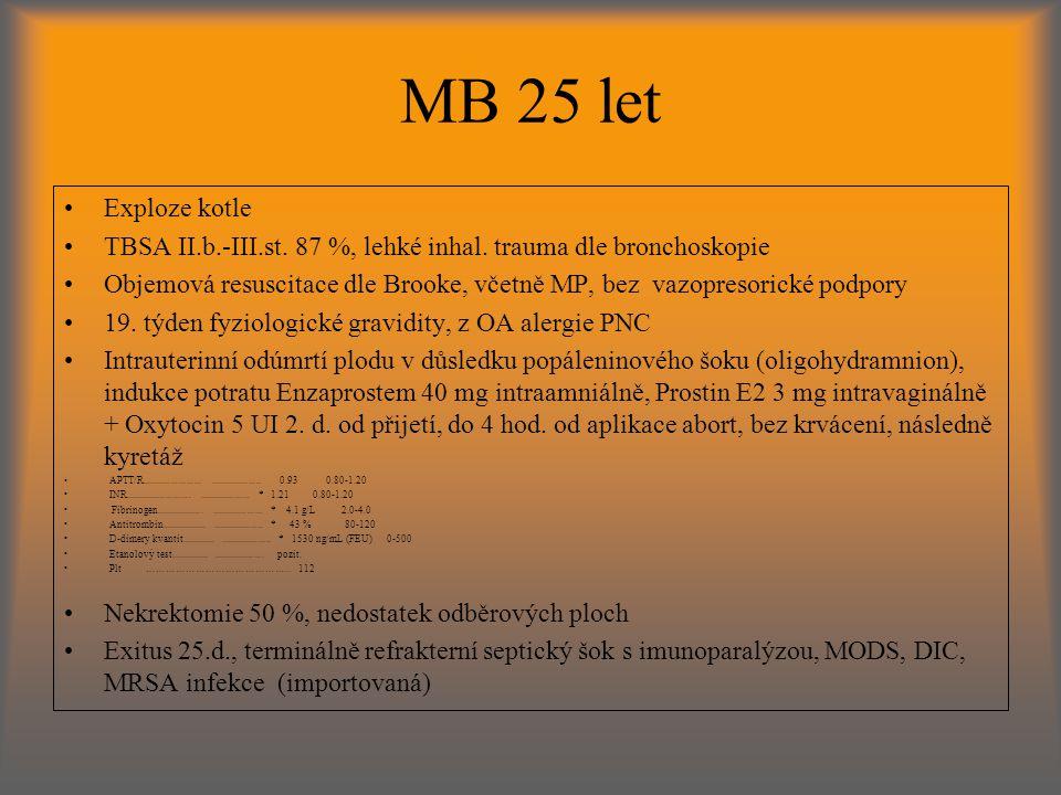 MB 25 let Exploze kotle TBSA II.b.-III.st.87 %, lehké inhal.