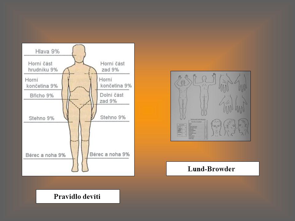 Pravidlo devíti Lund-Browder
