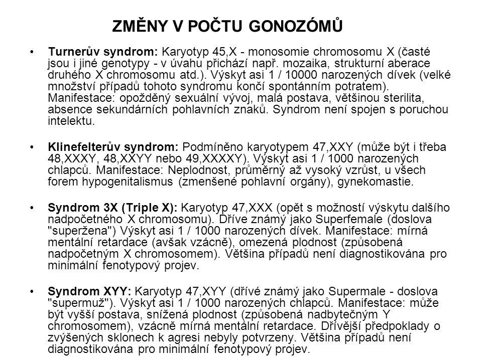 Turnerův syndrom: Karyotyp 45,X - monosomie chromosomu X (časté jsou i jiné genotypy - v úvahu přichází např. mozaika, strukturní aberace druhého X ch