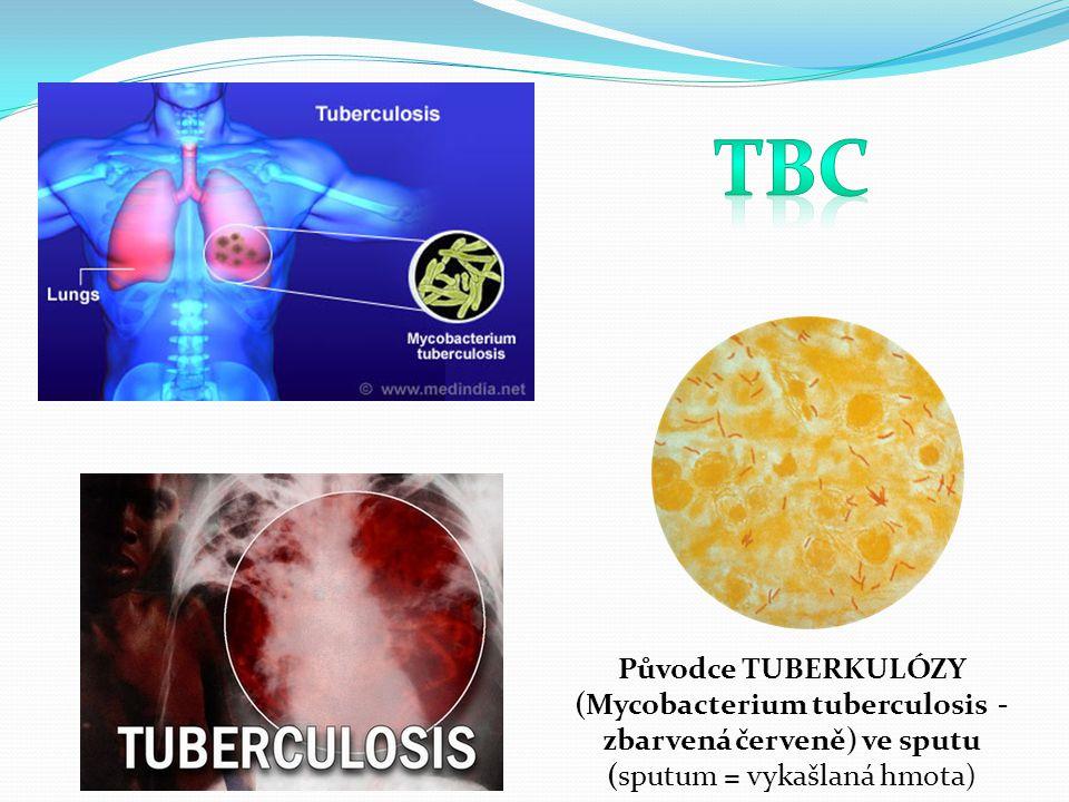 Původce TUBERKULÓZY (Mycobacterium tuberculosis - zbarvená červeně) ve sputu (sputum = vykašlaná hmota)