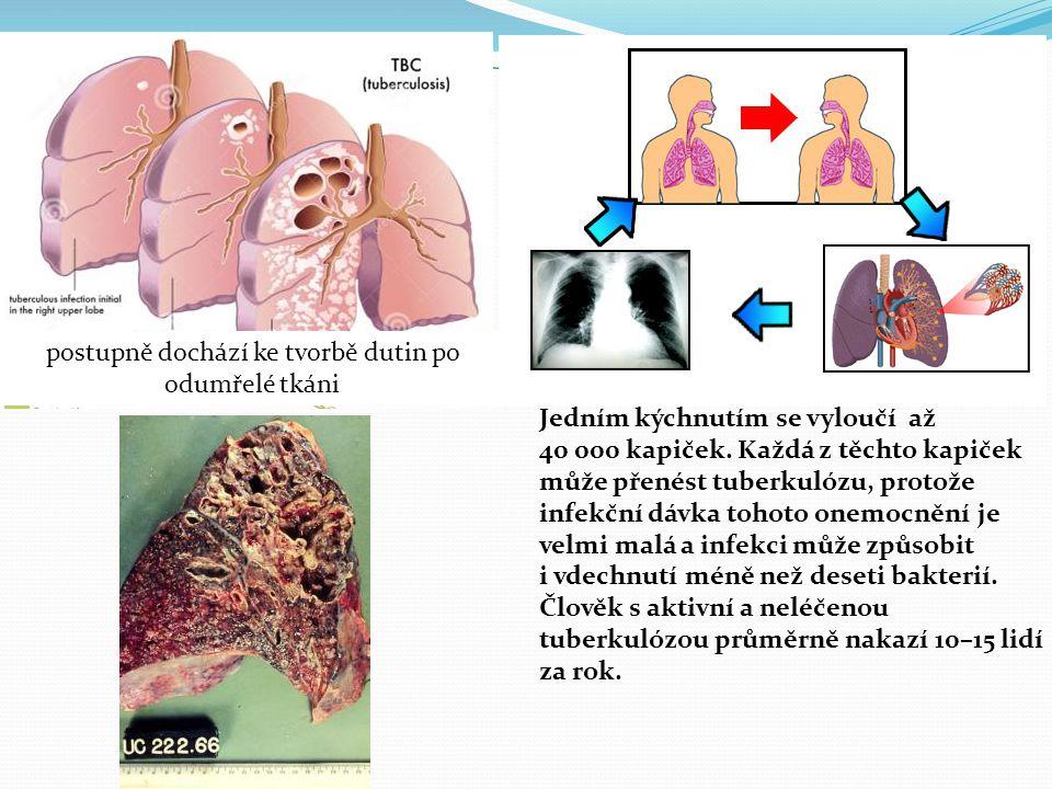 Jedním kýchnutím se vyloučí až 40 000 kapiček. Každá z těchto kapiček může přenést tuberkulózu, protože infekční dávka tohoto onemocnění je velmi malá