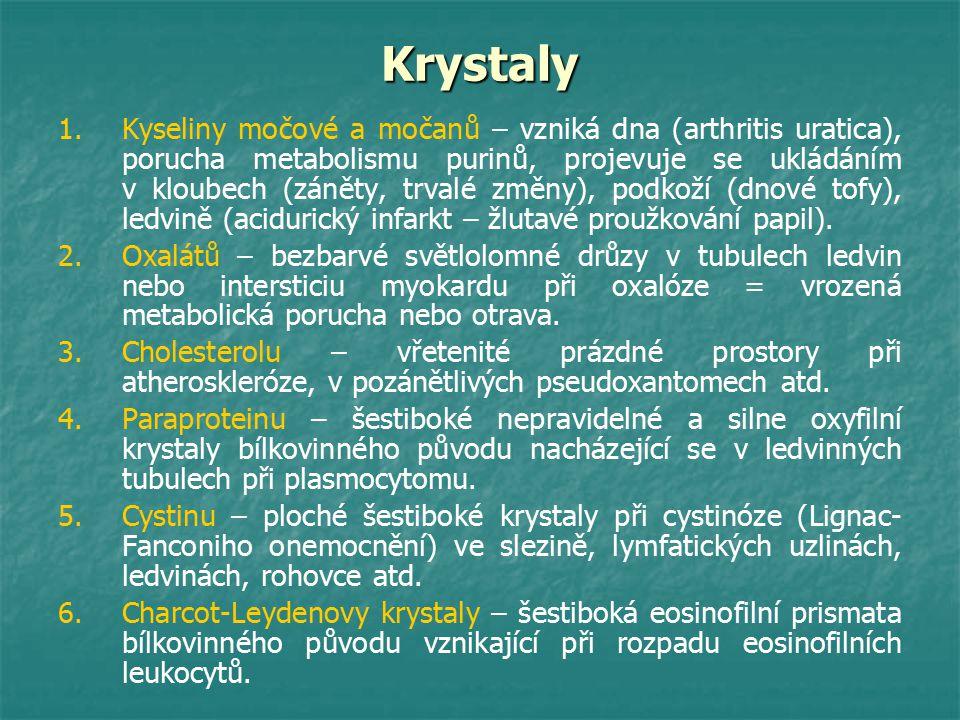 Krystaly 1. 1.Kyseliny močové a močanů – vzniká dna (arthritis uratica), porucha metabolismu purinů, projevuje se ukládáním v kloubech (záněty, trvalé