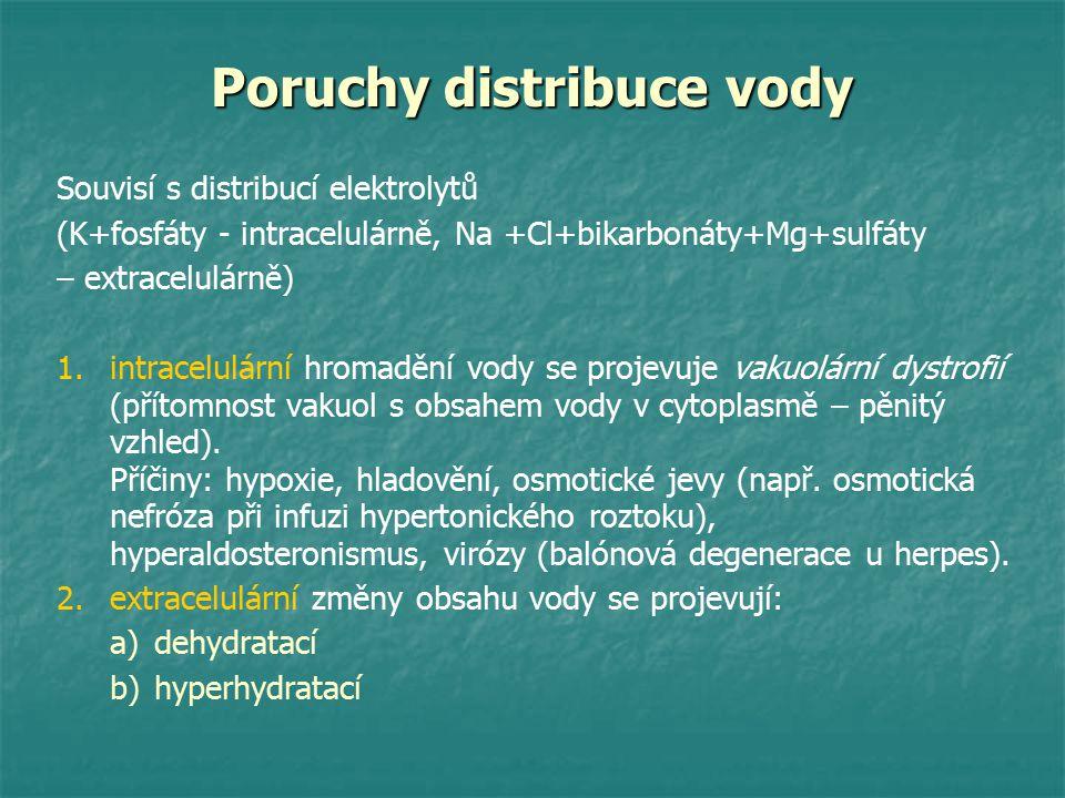 Poruchy distribuce vody Souvisí s distribucí elektrolytů (K+fosfáty - intracelulárně, Na +Cl+bikarbonáty+Mg+sulfáty – extracelulárně) 1. 1.intracelulá